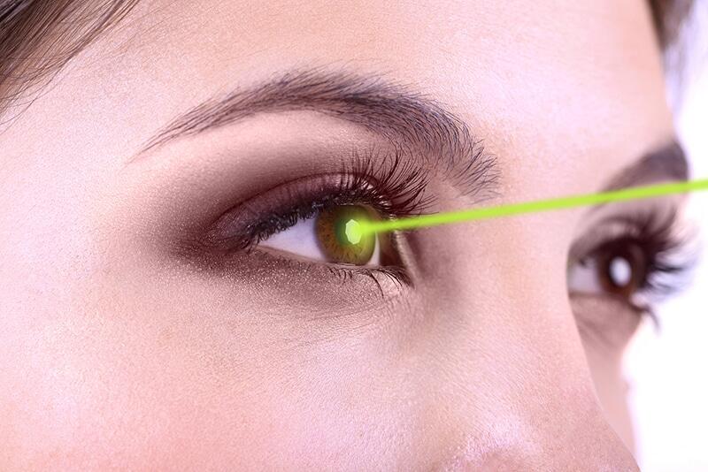 Điều trị cườm mắt bằng phẫu thuật tia laser